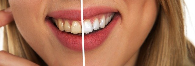 blanchiment dent